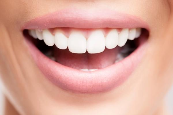 Izbjeljivanje zubi crnim ugljenom